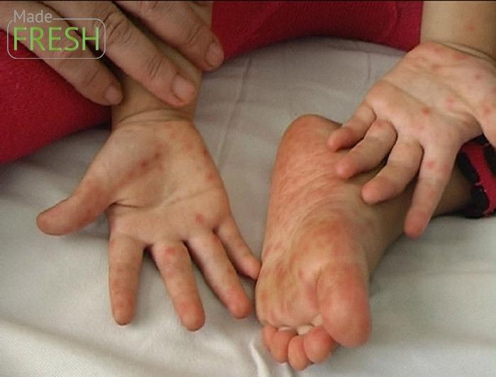 Cần nên sửa dụng gel rửa tay khô để phòng ngừa bệnh tay chân miệng ở trẻ