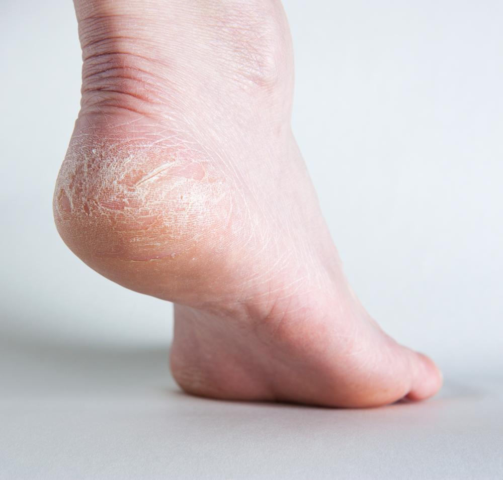 vừng đen điều trị nứt gót chân