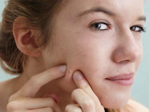 Phương pháp trị sẹo