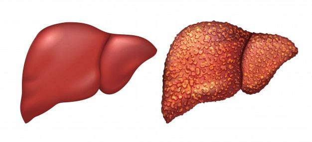 bệnh gian không nên dùng rau má