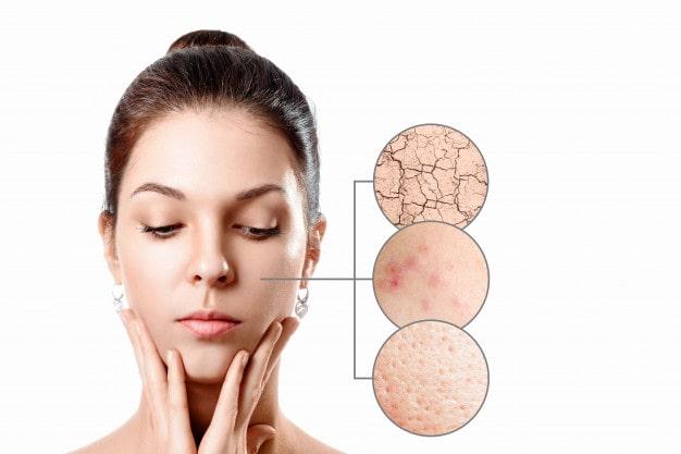các triệu chứng thường gặp khi khô da
