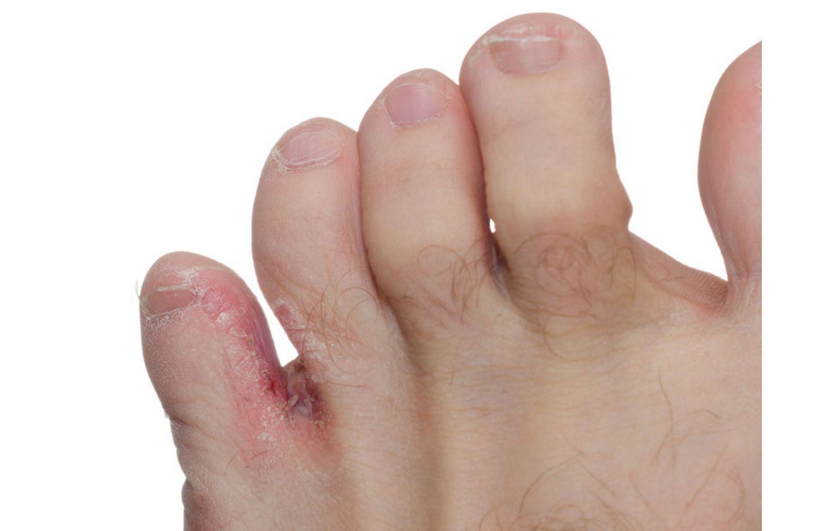 Bệnh nấm kẽ chân