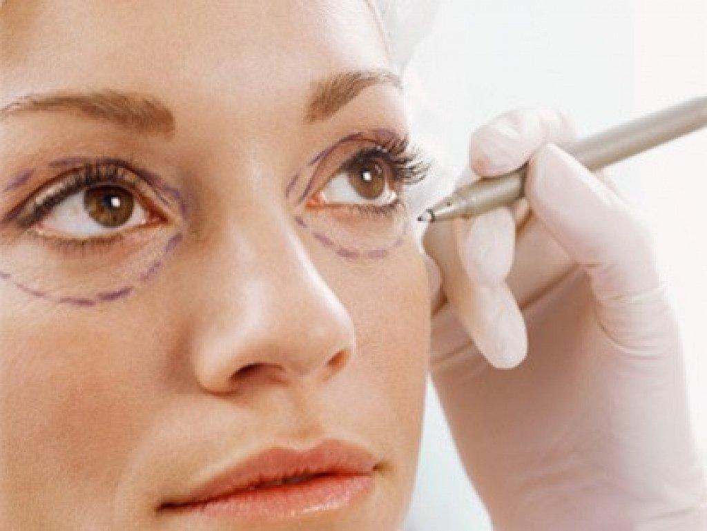 Phẫu thuật cắt bọng mắt